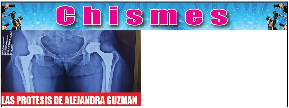 Las prótesis de Alejandra Guzmán