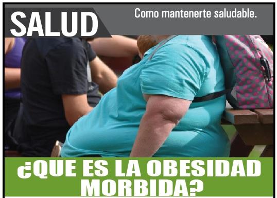 Qué es la obesidad morbida?
