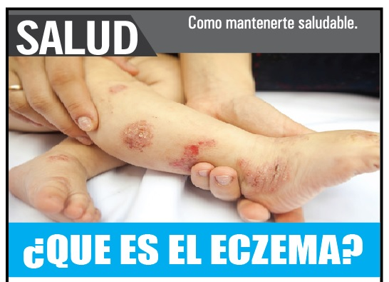 ¿Qué es el eczema?