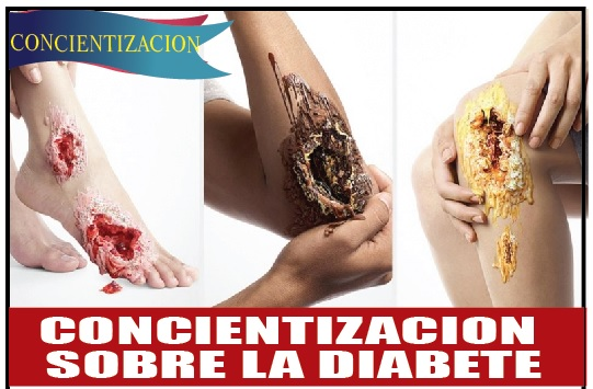 Concientización sobre la diabetes
