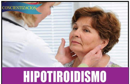 HIPOTIROIDISMO 3 de 3