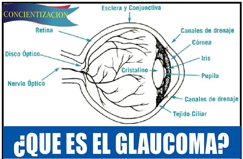 ¿QUE ES EL GLAUCOMA? 2